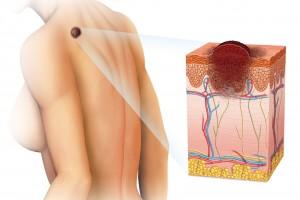 Ilustración de una piel con una mancha y un corte de piel de como afecta el cáncer de piel