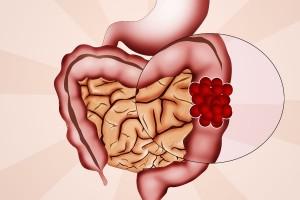 El colon es un conducto muscular que forma parte del aparato digestivo