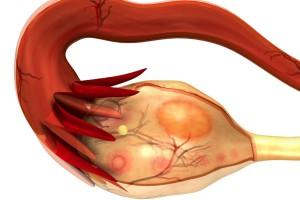 Los síntomas del cáncer de ovario pueden confundirse a menudo con los síntomas de otras enfermedades menos graves.