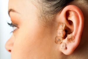 Acercamiento al oído de una mujer con auriculoterapia