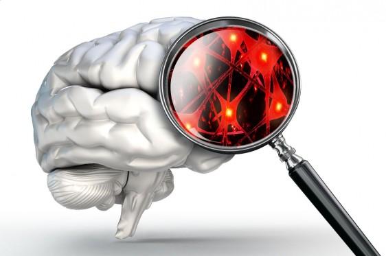 El ejercicio puede afectar a los biomarcadores de la función cerebral de una manera que podría prevenir o posponer la aparición de la demencia.