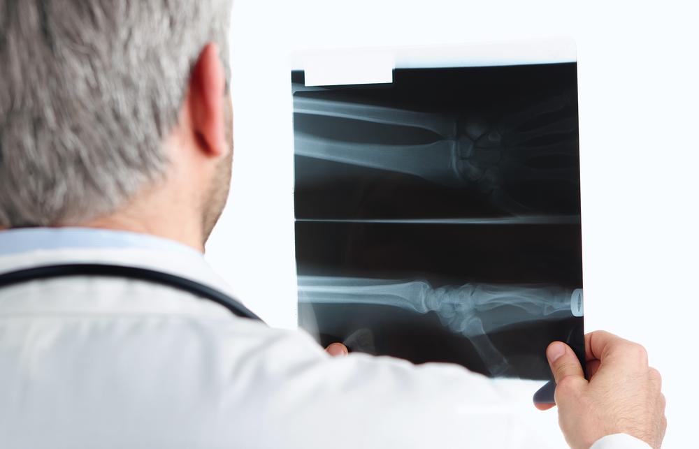 La tecnología abre nuevas opciones para tratar tumores malignos en huesos.
