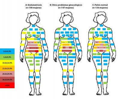 Se les pidió a las mujeres que indicaran en un dibujo las zonas donde sentían dolor. Los bloques codificados por color indican la cantidad de mujeres que reportaron dolor, que fluctúa desde el mínimo dolor (bloque superior) hasta el máximo dolor (bloque inferior). La mayoría de las mujeres reportó dolor en el área pélvico-abdominal. La mayor cantidad de mujeres que reportó dolor en el área pélvico-abdominal fue la que más tarde recibió un diagnóstico de endometriosis. Alt text: Dibujo de las zonas del cuerpo en donde las mujeres reportaron dolor.