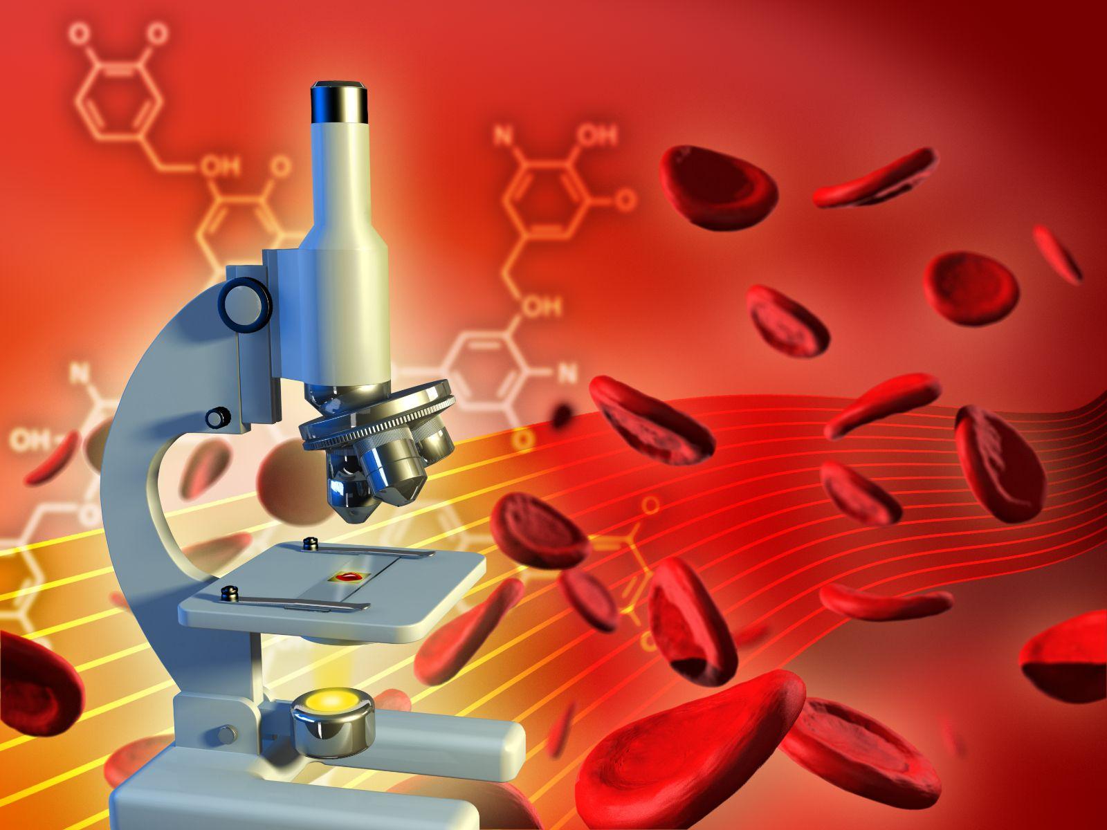 BLINATUMOMAB casi duplicó la mediana de supervivencia global en pacientes de alto riesgo con leucemia linfoblástica aguda de precursores de células B en comparación con el tratamiento de referencia de quimioterapia.