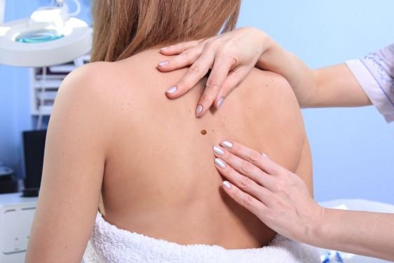 Vigilar y realizar evaluaciones a la piel, son dos medidas excelentes para detectar el melanoma y otros tipos de cáncer de piel, pues cuanto antes se descubre el cáncer de piel, mejor es la oportunidad de curarlo.