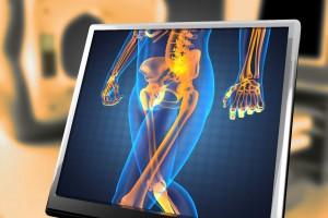 Las enfermedades de la cadera se presentan al nacer, en la infancia, adultez y en la vejez. Por esta razón es importante estar atento a los signos y síntomas que se pueden presentar durante su vida.