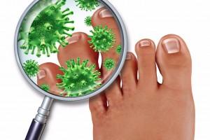Consejos de Mayo Clinic: Tratamiento de los hongos en las uñas de los piesvuelve más profunda, los hongos pueden provocar decoloración, engrosamiento o desmoronamiento en el borde de la uña.
