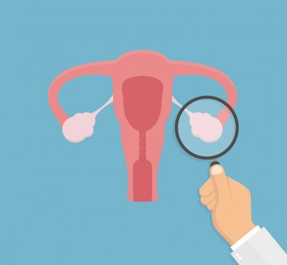 El HRAEI en alianza con la AMLCC buscan atención oportuna para mujeres con cáncer de ovario.