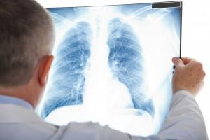 90% de los casos se relacionan con el consumo del tabaco.