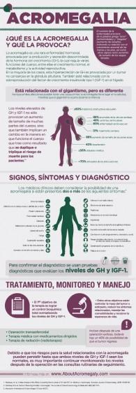 Infografía de la Acromegalia