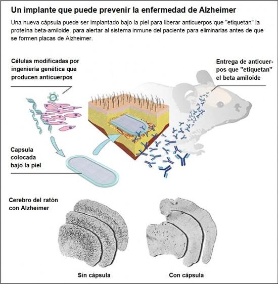 Como funciona la cápsula para liberar anticuerpos en el cerebro.