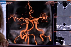 Propuesta para reinventar radiología; primer TAC espectral capaz de caracterizar composición exacta de tejidos