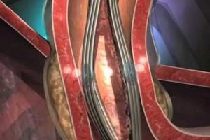 Se estudiará a pacientes con GERD registrada durante un mínimo de 6 meses luego de la gastrectomía en manga