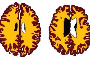 Comparación de materia gris (en cáfe) y materia blanca (en amarillo) en par de sujetos del mismo sexo A (56 años, IMC 19.5) B (50 años, IMC 43.4)