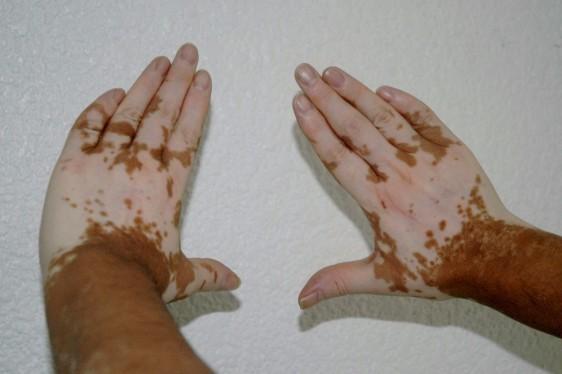 Las manchas pueden aparecer en cualquier parte del cuerpo