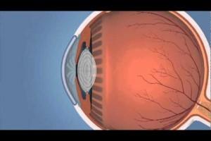 Y tú, ¿cómo ves?; datos que debes conocer del Glaucoma y Edema Macular