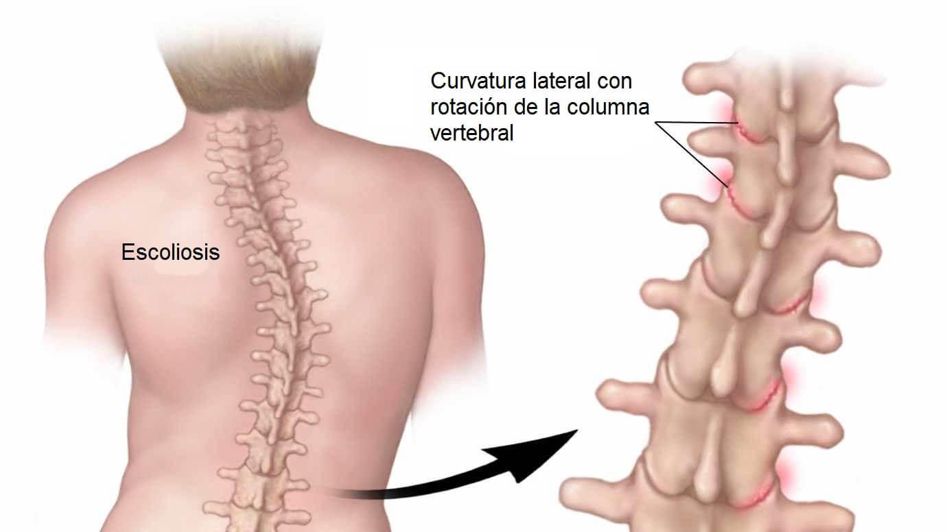 El dolor en el cuello y la cabeza y el entumecimiento