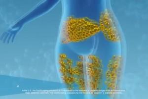 Presentan en México tratamiento no quirúrgico para reducir grasa corporal