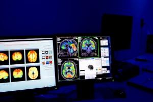 El trabajo de investigación se publicó en la revista científica internacional Journal of Alzheimer's Disease