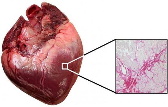 Imagen microscópica del miocardio en la pared ventricular de un paciente con insuficiencia cardíaca. El tejido rojo corresponde a la fibrosis del músculo cardíaco.