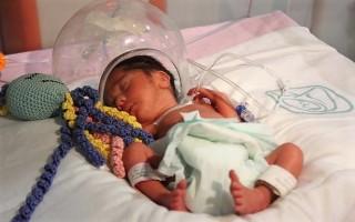 """Voluntariado IMSS Arranca Proyecto """"Pulpos con Causa"""" para Mejorar el Desarrollo de Bebés Prematuros"""