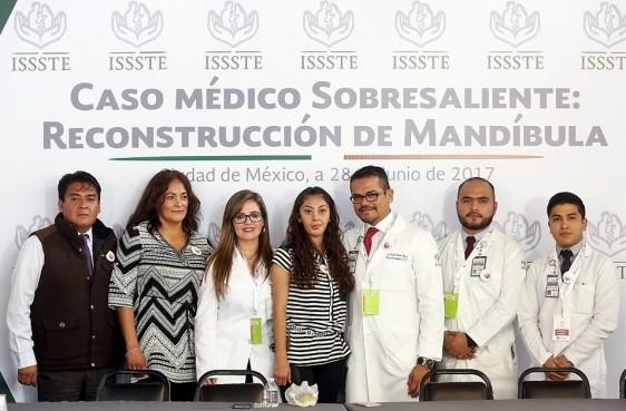 """Cirujanos maxilofaciales del Centro Médico Nacional """"20 de Noviembre"""" posicionan al ISSSTE a la vanguardia al colocar la 2ª prótesis total de mandíbula a la medida realizada en el Instituto y en el mundo."""