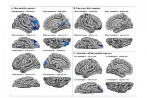 Imagen que muestra las regiones del cerebro afectadas por las partículas finas y gruesas.