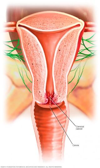El cáncer de cuello uterino se produce en las células del cuello del útero (la parte baja que se conecta con la vagina).
