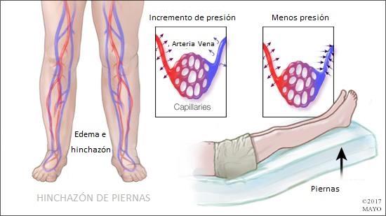 Es relativamente común entre los ancianos y puede deberse a la retención de líquido o a la inflamación de tejidos o articulaciones que tienen una lesión o una enfermedad.