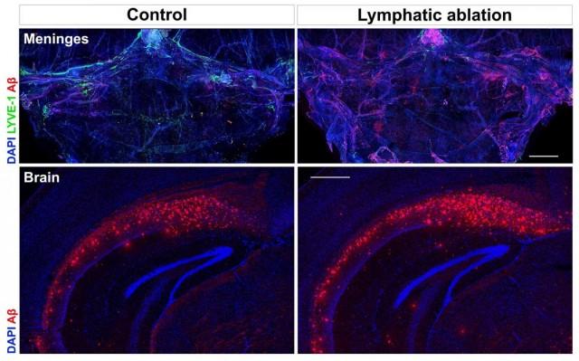 La obstrucción de vasos linfáticos (verde) en un modelo de ratón con Alzheimer incrementa la acumulación de placas tóxicas en el cerebro.