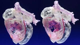 Modelos obtenidos con impresión tridimensional suelen ser valiosos para los cirujanos