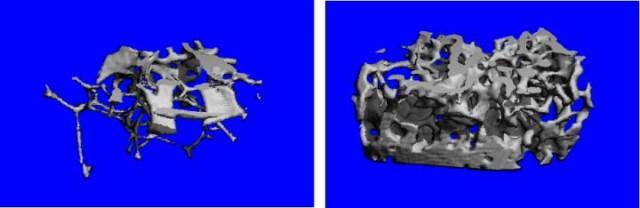 Los huesos como el fémur (hueso del muslo) normalmente se vuelven débiles y porosos en ratones envejecidos (71 semanas, izquierda), pero un cambio experimental en la señalización del cerebro condujo a huesos mucho más densos y más fuertes a la misma edad (derecha).