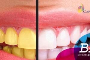 Mantener una mejor higiene bucal te permitirá disminuir el pigmento de tus dientes y alcanzar una mejor sonrisa.