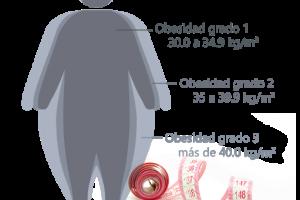 algunas de las propuestas médicas para tratar la obesidad y sus consecuencias.