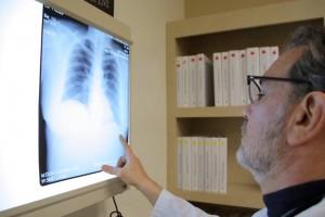 ¿Conoces cuáles son las enfermedades pulmonares causadas por el tabaco?