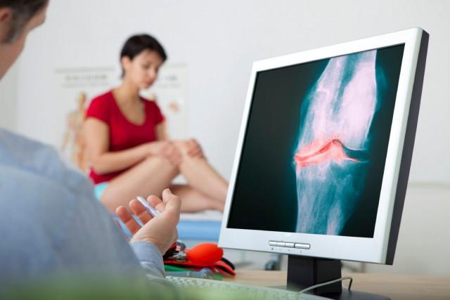 La osteoartritis (OA) es la enfermedad más común dentro de las enfermedades reumáticas crónicas.
