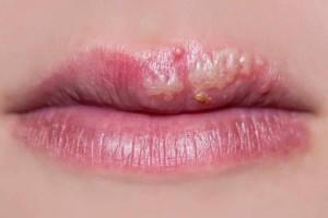 Los niños menores de 5 años pueden tener herpes labial dentro de la boca y las lesiones frecuentemente se confunden con aftas. Las aftas solo afectan la membrana mucosa y no se deben al virus del herpes simple.