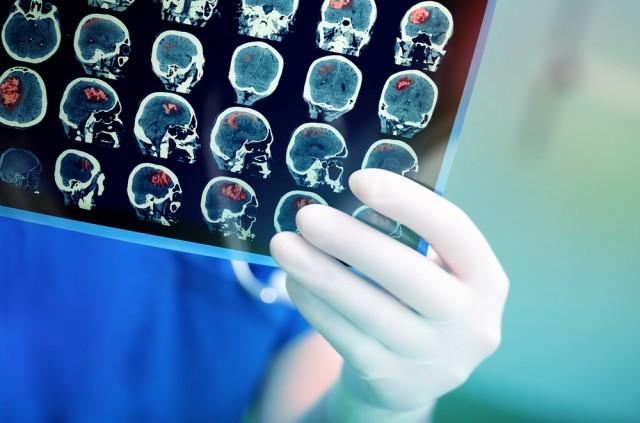 El diagnóstico para el tratamiento óptimo en caso de un ACV se puede determinar mediante diversos tipos de análisis y exploraciones; ya sea por tomografía computarizada, imágenes por resonancia magnética, ecografía o angiografía cerebral, entre otros.