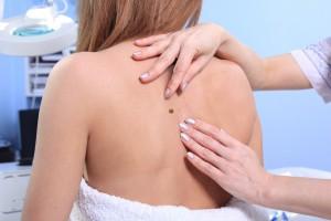 La exposición a las camas de bronceado también aumenta el riesgo de cáncer de piel, incluido el melanoma.