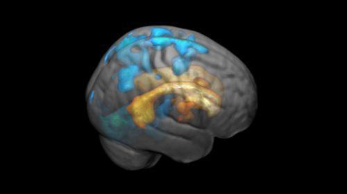 Manchas blancas en el cerebro