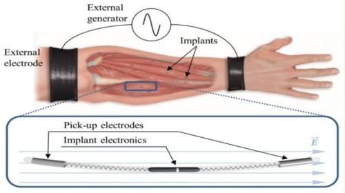 nuevo método de transmisión inalámbrica de potencia para implantes electrónicos inyectables