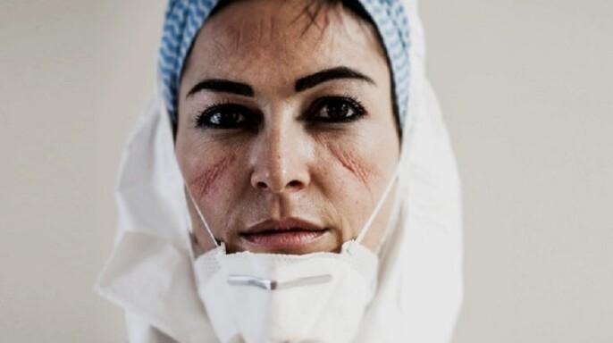 enfermera con marcas en el rostro por uso de cubrebocas