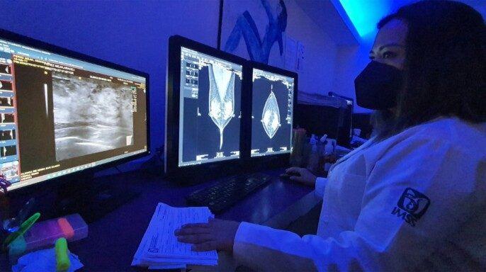 Estudio de mamografia